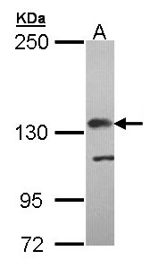 Sample (30 ug of whole cell lysate). A: Molt-4 . 5% SDS PAGE. CFH / Factor H antibody diluted at 1:5000.