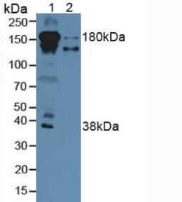 Western Blot; Sample: Lane1: Human Serum; Lane2: Human Liver Tissue.