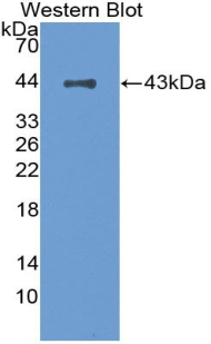Western blot of recombinant CFH / Complement Factor H.