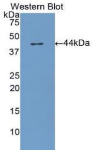 Western blot of recombinant CFH / Complement Factor H.  This image was taken for the unconjugated form of this product. Other forms have not been tested.