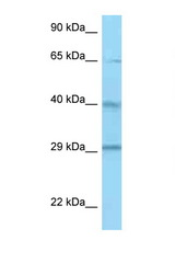CFHR1 / CFHL1 antibody Western blot of ACHN Cell lysate. Antibody concentration 1 ug/ml.  This image was taken for the unconjugated form of this product. Other forms have not been tested.