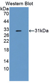 Western blot of CFI / Complement Factor I antibody.