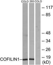 Western blot analysis of lysates from COLO205 and 293 cells, using Cofilin Antibody. The lane on the right is blocked with the synthesized peptide.