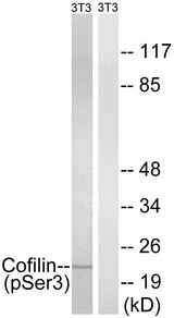 Western blot analysis of lysates from NIH/3T3 cells treated with paclitaxel 1uM 24hours, using Cofilin (Phospho-Ser3) Antibody. The lane on the right is blocked with the phospho peptide.
