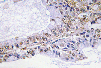 IHC of p-Cofilin (S3) pAb in paraffin-embedded human lung carcinoma tissue.
