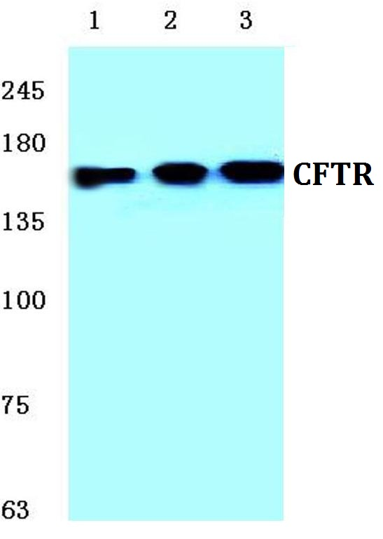 Western blot (WB) analysis of CFTR pAb at 1:500 dilution.Lane1:HEK293T whole cell lysate Lane2:Raw264.7 whole cell lysateLane3:PC12 whole cell lysate