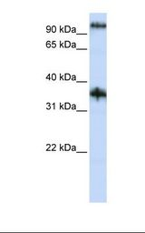CG6 / C9orf4 Antibody - Jurkat cell lysate. Antibody concentration: 1.0 ug/ml. Gel concentration: 12%.  This image was taken for the unconjugated form of this product. Other forms have not been tested.