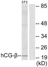 Western blot analysis of lysates from NIH/3T3 cells, using hCG beta Antibody. The lane on the right is blocked with the synthesized peptide.