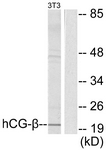 Western blot of extracts from NIH-3T3 cells, using hCG beta Antibody. The lane on the right is treated with the synthesized peptide.
