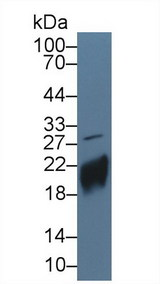 Western Blot; Sample: Human JAR cell lysate; ;Primary Ab: 5µg/ml Rabbit Anti-Human CGb Antibody;Second Ab: 0.2µg/mL HRP-Linked Caprine Anti-Rabbit IgG Polyclonal Antibody;