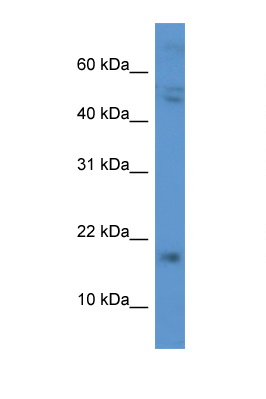 CGB / hCG Beta antibody Western blot of 435S Cell lysate. Antibody concentration 1 ug/ml.  This image was taken for the unconjugated form of this product. Other forms have not been tested.