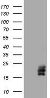 HEK293T cells were transfected with the pCMV6-ENTRY control (Left lane) or pCMV6-ENTRY CGB (Right lane) cDNA for 48 hrs and lysed. Equivalent amounts of cell lysates (5 ug per lane) were separated by SDS-PAGE and immunoblotted with anti-CGB.