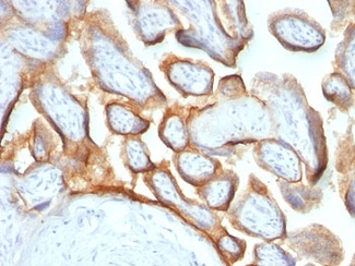 Formalin-fixed, paraffin-embedded human placenta stained with hCG beta antibody (HCGb/54 + HCGb/459).  This image was taken for the unmodified form of this product. Other forms have not been tested.