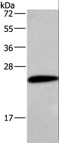 Western blot analysis of Human placenta tissue, using CGB Polyclonal Antibody at dilution of 1:454.