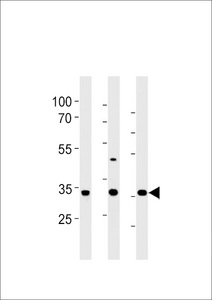 RAT Cgref1 Antibody western blot of rat liver,stomach and testis tissue lysates (35 ug/lane). The RAT Cgref1 antibody detected the RAT Cgref1 protein (arrow).