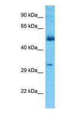 Western blot of CGREF1 Antibody with Thymus Tumor lysate.  This image was taken for the unconjugated form of this product. Other forms have not been tested.