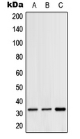 Western blot analysis of Hydrophobestin expression in HeLa (A); SP2/0 (B); H9C2 (C) whole cell lysates.