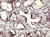 IHC of paraffin-embedded Carcinoma of Human prostate tissue using anti-CHAF1B mouse monoclonal antibody. (Heat-induced epitope retrieval by 10mM citric buffer, pH6.0, 120°C for 3min).