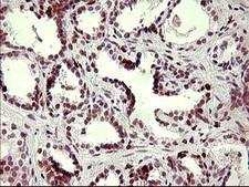 CHAF1B / CAF1 Antibody - IHC of paraffin-embedded Carcinoma of Human prostate tissue using anti-CHAF1B mouse monoclonal antibody. (Heat-induced epitope retrieval by 10mM citric buffer, pH6.0, 120°C for 3min).