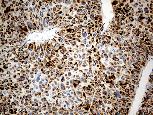 CHCHD10 Antibody - Immunohistochemical staining of paraffin-embedded Carcinoma of Human liver tissue using anti-CHCHD10 mouse monoclonal antibody. (Heat-induced epitope retrieval by 1mM EDTA in 10mM Tris buffer. (pH8.5) at 120°C for 3 min. (1:500)