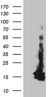 CHCHD10 Antibody - HEK293T cells were transfected with the pCMV6-ENTRY control. (Left lane) or pCMV6-ENTRY CHCHD10. (Right lane) cDNA for 48 hrs and lysed. Equivalent amounts of cell lysates. (5 ug per lane) were separated by SDS-PAGE and immunoblotted with anti-CHCHD10. (1:2000)
