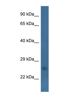 CHCHD6 antibody LS-C135505 Western blot of Fetal Heart lysate. Antibody concentration 1 ug/ml.  This image was taken for the unconjugated form of this product. Other forms have not been tested.