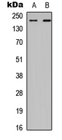 CHD2 Antibody - Western blot analysis of CHD2 expression in HEK293T (A); A549 (B) whole cell lysates.