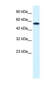 CHEK1 / CHK1 antibody Western blot of HepG2 cell lysate. This image was taken for the unconjugated form of this product. Other forms have not been tested.