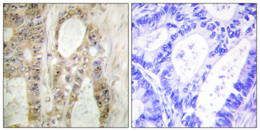 CHEK1 / CHK1 Antibody - Immunohistochemistry analysis of paraffin-embedded human colon carcinoma, using Chk1 Antibody. The picture on the right is blocked with the synthesized peptide.