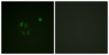 Immunofluorescence analysis of A549 cells, using Chk1 Antibody. The picture on the right is blocked with the synthesized peptide.