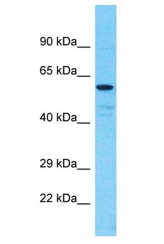 CHEK1 / CHK1 antibody Western Blot of PANC1. Antibody dilution: 3 ug/ml.  This image was taken for the unconjugated form of this product. Other forms have not been tested.