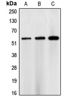 CHEK1 / CHK1 Antibody - Western blot analysis of CHK1 expression in HEK293T (A); NIH3T3 (B); rat heart (C) whole cell lysates.