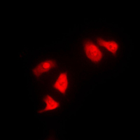 Immunofluorescent analysis of CHK1 staining in HeLa cells. Formalin-fixed cells were permeabilized with 0.1% Triton X-100 in TBS for 5-10 minutes and blocked with 3% BSA-PBS for 30 minutes at room temperature. Cells were probed with the primary antibody in 3% BSA-PBS and incubated overnight at 4 C in a humidified chamber. Cells were washed with PBST and incubated with a DyLight 594-conjugated secondary antibody (red) in PBS at room temperature in the dark. DAPI was used to stain the cell nuclei (blue).