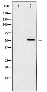 CHEK1 / CHK1 Antibody - Western blot of Chk1 expression in UV treated HT29 whole cell lysates,The lane on the left is treated with the antigen-specific peptide.
