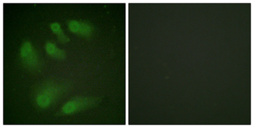 Immunofluorescence analysis of HeLa cells, using Chk1 (Phospho-Ser286) Antibody. The picture on the right is blocked with the phospho peptide.