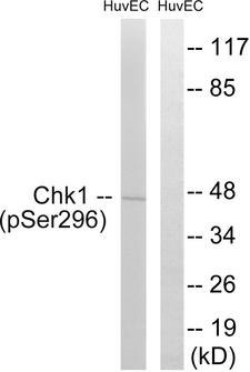 CHEK1 / CHK1 Antibody - Western blot analysis of lysates from HUVEC cells treated with UV 15', using Chk1 (Phospho-Ser296) Antibody. The lane on the right is blocked with the phospho peptide.