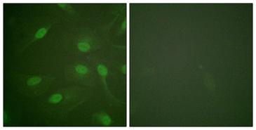 CHEK1 / CHK1 Antibody - Immunofluorescence analysis of HeLa cells, using Chk1 (Phospho-Ser301) Antibody. The picture on the right is blocked with the phospho peptide.