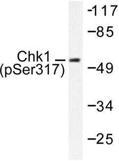 CHEK1 / CHK1 Antibody - Western blot of p-Chk1 (S317) pAb in extracts from MCF7 cells.