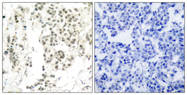 CHEK1 / CHK1 Antibody - Immunohistochemistry analysis of paraffin-embedded human breast carcinoma, using Chk1 (Phospho-Ser345) Antibody. The picture on the right is blocked with the phospho peptide.