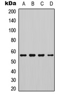 CHEK1 / CHK1 Antibody - Western blot analysis of CHK1 (pS345) expression in HeLa (A); Jurkat (B); HL60 (C); mouse brain (D) whole cell lysates.