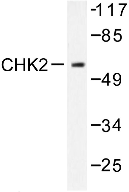 Western blot of Chk2 (S379) pAb in extracts from COS7 cells treated with UV 30'.