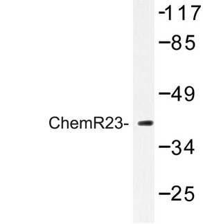 Western blot of ChemR23 (R249) pAb in extracts from Jurkat cells.