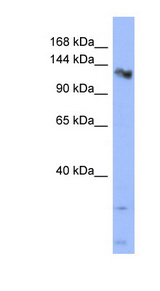 CHERP antibody Western blot of HT1080 cell lysate. This image was taken for the unconjugated form of this product. Other forms have not been tested.