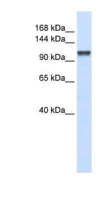 CHERP antibody Western blot of 293T cell lysate. This image was taken for the unconjugated form of this product. Other forms have not been tested.