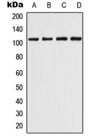 Western blot analysis of CHERP expression in THP1 (A); K562 (B); Raw264.7 (C); H9C2 (D) whole cell lysates.