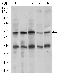 Western blot using CHGA mouse monoclonal antibody against MOLT4 (1), SK-N-SH (2), HepG2 (3), PC-12 (4), and C6 (5) cell lysate.