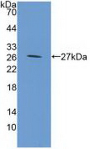 Western Blot; Sample: Recombinant GP39, Mouse.