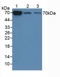 Western Blot;1: Mouse Liver Tissue; 2: Mouse Lung Tissue;3:Mouse Spleen Tissue.