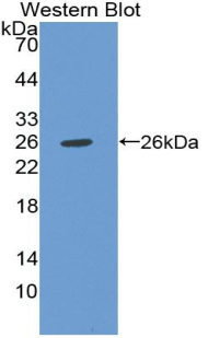 Western blot of recombinant CHI3L1 / YKL-40.  This image was taken for the unconjugated form of this product. Other forms have not been tested.