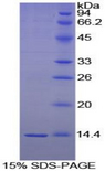 BDNF Protein - Recombinant Brain Derived Neurotrophic Factor By SDS-PAGE
